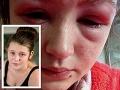 Ketie (16) chcela byť krásna: Táto procedúra ju takmer pripravila o zrak!