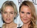 Bridget Jones šokovala celý svet: Má úplne inú tvár - je to ešte vôbec ona?!