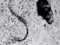 Fantastický zásah bielych krviniek na VIDEU: Sledujte, ako zatočia s parazitom!