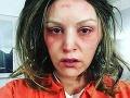 Slovenská herečka dobitá a strhaná: Napadol ju niekto?