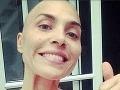 Lorena Meritano v čase, keď bojovala s rakovinou.