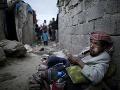 Jemen na pokraji totálnej katastrofy: OSN varuje pred vypuknutím veľkého hladomoru