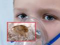 Lekárov vydesil nový prípad strašidelnej stredovekej choroby: Chlapec (10) sa nakazil od blchy!