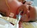 Dievčatko na FOTO lekári vytrhli z náručia smrti: Strašidelná anomália ho pripravila o krv