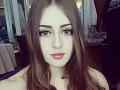 Ruska (20) s krásnou tvárou nie je taká, aká sa na prvý pohľad zdá: FOTO zvyšku bizarného tela