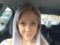 Nicola (24) porazila smrť, prežila len zázrakom: FOTO z čias, keď sa jej hnusil aj pohár vody