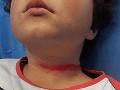 Mama zverejnila desivé FOTO: Pri krutej hre jej takmer uškrtili syna (9)