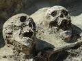 FOTO Masový hrob odkryl tajomstvo smrti ruských, cárskych vojakov