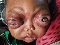 FOTO Strašný pohľad na dieťa: Ochorenie urobilo z chlapčeka (2) mimozemšťana