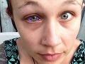 Tetovanie oka zničilo život mladej modelky: Moderný výstrelok ju dohnal takmer k samovražde