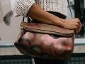 V Leviciach prepadli ženu: Prišla o kabelku, pri páde sa vážne zranila