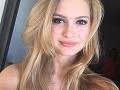 Kráska (23) cvičila vo fitku, od krku dolu ochrnula: Stalo sa TO pri brušákoch...