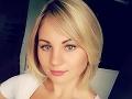 Slovenská speváčka po drsnom rozchode: Toto je môj nový frajer!