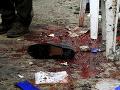 Útoky na kostoly a mešity v priebehu rokov: Pre svoju vieru umierali stovky ľudí