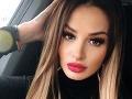 Plačková na luxusnej dovolenke v Dubaji: Stala sa obeťou krádeže!