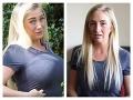 VIDEO Blondínka s mega prsiami: Šokujúce priznanie z minulosti, je to prekliatie!