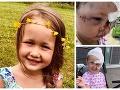 Brutálny útok psa: FOTO Kríženec dievčatku (4) rozdrvil lebku, hralo sa v záhrade ich domu