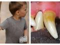 Horor v Česku: Na chlapca (9) pri prechádzke zaútočil kríženec pitbula, je ťažko ranený