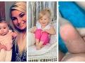 Dievčatko trpí vzácnou alergiou: Leto je pre celú rodinu peklo, všetko sa začalo, keď malo rok