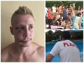Plavčík prehovoril o krvavej dráme na kúpalisku: Je to tam peklo, FOTO zmláteného Davida (25)