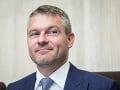 Premiér reaguje na koaličnú krízu: Dôchodky nás nerozdeľujú