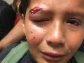 Šikanovaný chlapec si získal celý svet: Odmietol násilie, jeho slová vás dostanú