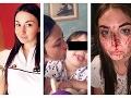 FOTO plné hrôzy: S krásnou mamičkou (27) sa bývalý partner nemaznal, dostal smiešny trest