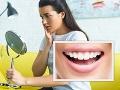 Žiarivo biely úsmev za pár minút vám zničí sklovinu FOTO: Nebezpečná kozmetika ohrozuje Slovákov