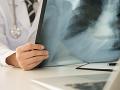 Taliansko zasiahla infekcia: Zápaly pľúc sa šíria po celom Lombardsku