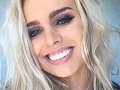 Blondínka (21) sa pokúsila o samovraždu: Dohnali ju k tomu účinky tohto implantátu