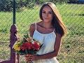 Spálená Češka zverejnila FOTO: Cíti sa ako princezná!