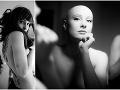 FOTO Sara je nádherná žena, no bez vlasov: Keď povie ľuďom, prečo ich nemá, ostanú zdesení