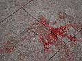 Krvavá dráma v bistre: Hosť rozzúrený do nepríčetna, agresívny útok nožom
