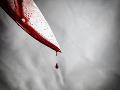 Otrasný prípad z Michaloviec: Polícia vyšetruje pokus o vraždu, ženu (57) bodli do hlavy
