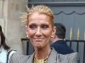 Známa speváčka vychudnutá na kosť: Céline, och, najedz sa!