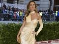 Brazílska modelka a manželka športovej superstar: Tomuto vďačím za znalosť angličtiny