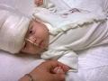 Dcérka pani Miloty mala zdeformovanú lebku.