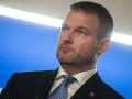 Slovensko má iné problémy ako dohodu s USA: Podľa Pellegriniho zmluva nie je riziko