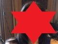 Žena (36) išla na plastiku, aby vyzerala ako Meghan Markle: FOTO výsledku... veď posúďte sami