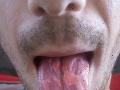 Mladík zverejnil FOTO svojho nechutného jazyka: Je výsledkom bežnej závislosti