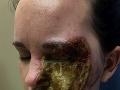 FOTO Žena prišla o polovicu tváre pri bežnej činnosti: Keď ju zbadala dcéra, zostala zhrozená