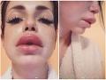 Zuzanita Žilinčíková zverejnila na Instagrame svoju znetvorenú tvár.