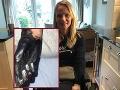 FOTO Lydii (41) lekári neskoro určili správnu diagnózu: Prišla kvôli tomu o tri končatiny