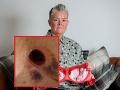 Žena (51) nosila dlhé roky tesnú podprsenku s kosticami: FOTO katastrofických následkov