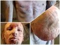 Muž trpí vážnou kožnou chorobou