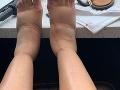 Cardi B zverejnila fotku hrozivo opuchnutých nôh.