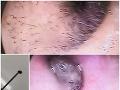 Psičkárka skončila v nemocnici: VIDEO odporného nálezu v jej uchu, stať sa to môže aj vám