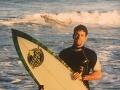 FOTO Surfista si v nohe našiel starý zub: Jeho DNA pomohla vyriešiť 25-ročnú záhadu