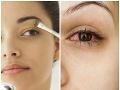 Slovenky, pozor na očné tiene a sérum na riasy na FOTO, inak vám hrozí bolestivá alergická reakcia