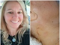 Horor v exotickom raji: FOTO Zranená blondínka sa na klinike dozvedela šokujúcu správu!